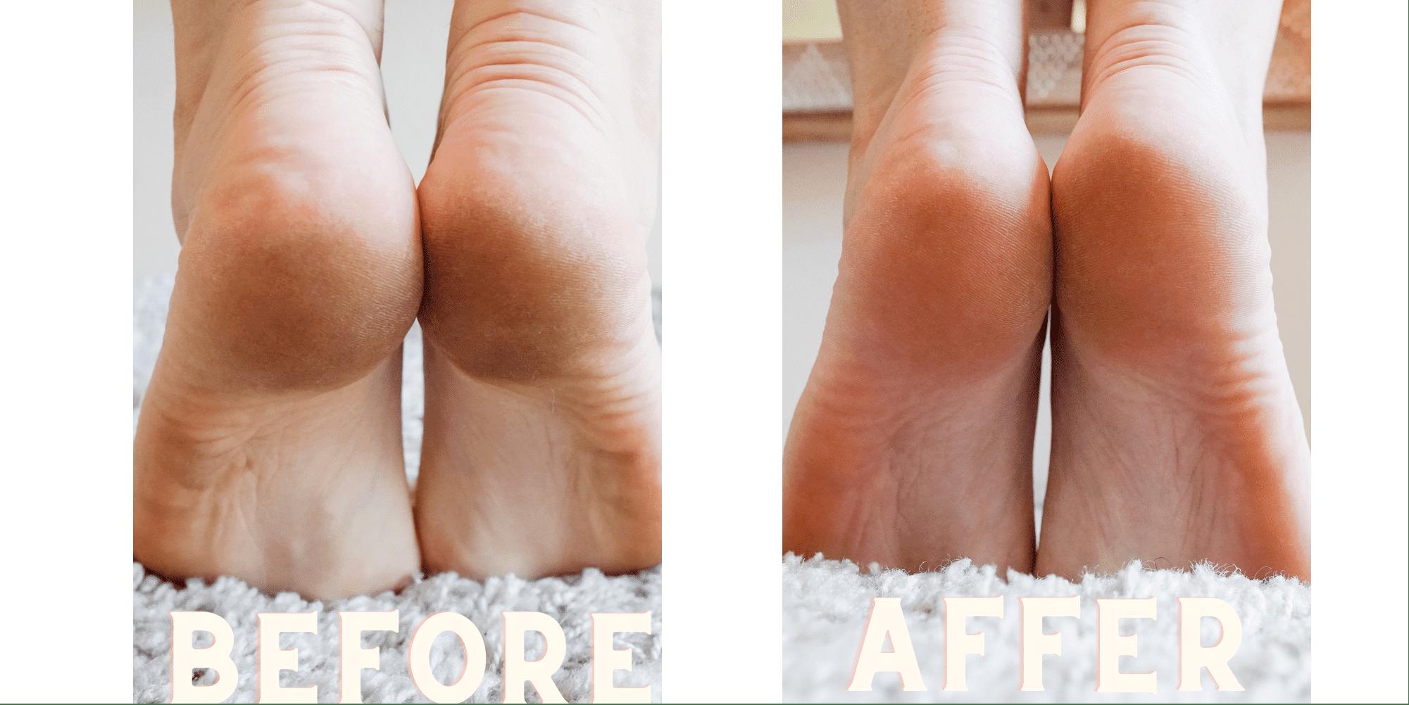Kerasal Intensive Foot Repair Kerasal Multi-Purpose Nail Repair